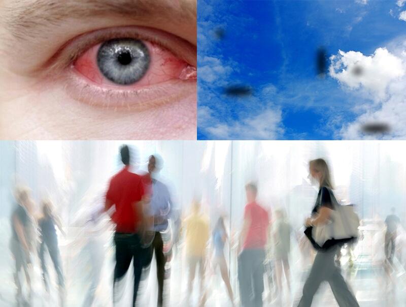 Mổ cườm mắt có thể gây ra một số biến chứng nguy hiểm